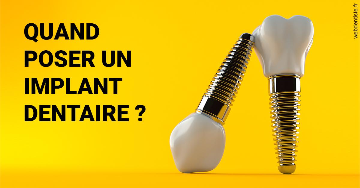 https://selarl-ms-dentaire.chirurgiens-dentistes.fr/Les implants 2